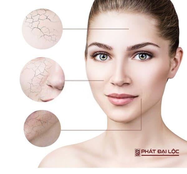 da hỗn hợp tập trung chử yếu vùng trán, mũi và cằm