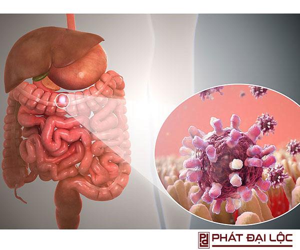 Viêm dạ dày ruột là gì ? Dấu hiệu - nguyên nhân, phòng ngừa như thế nào